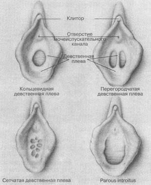 Девственная плева у Женщин, по наличию отверстий практически полностью повт